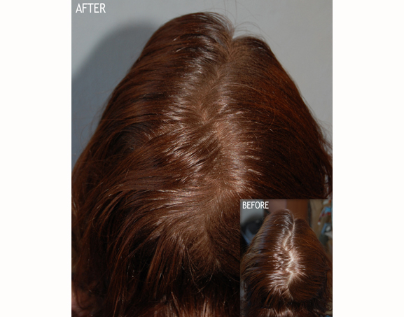 *New Maxi Pro Hair Thickening Fibres - Image 4